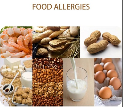 Food Allergies PDF